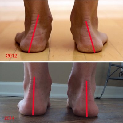 «Good» running shoes lead to injuries – here is the proof:
